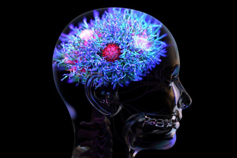 Covid: Uno de cada tres recuperados sufre secuelas neurológicas • Canal C